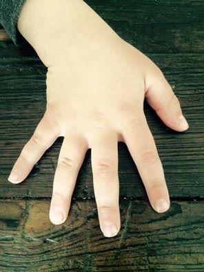 matt's hand